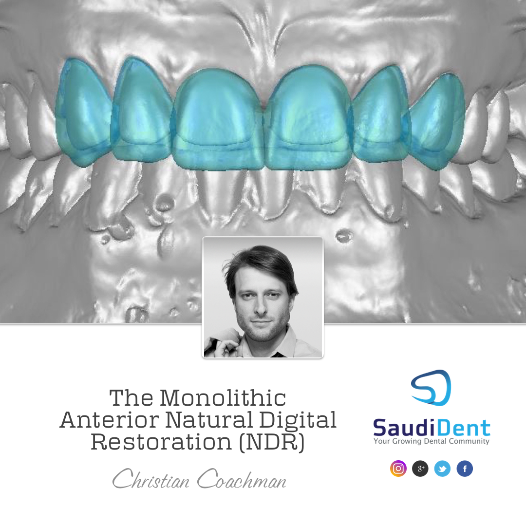 THE MONOLITHIC ANTERIOR NATURAL DIGITAL RESTORATION | Christian Coachman