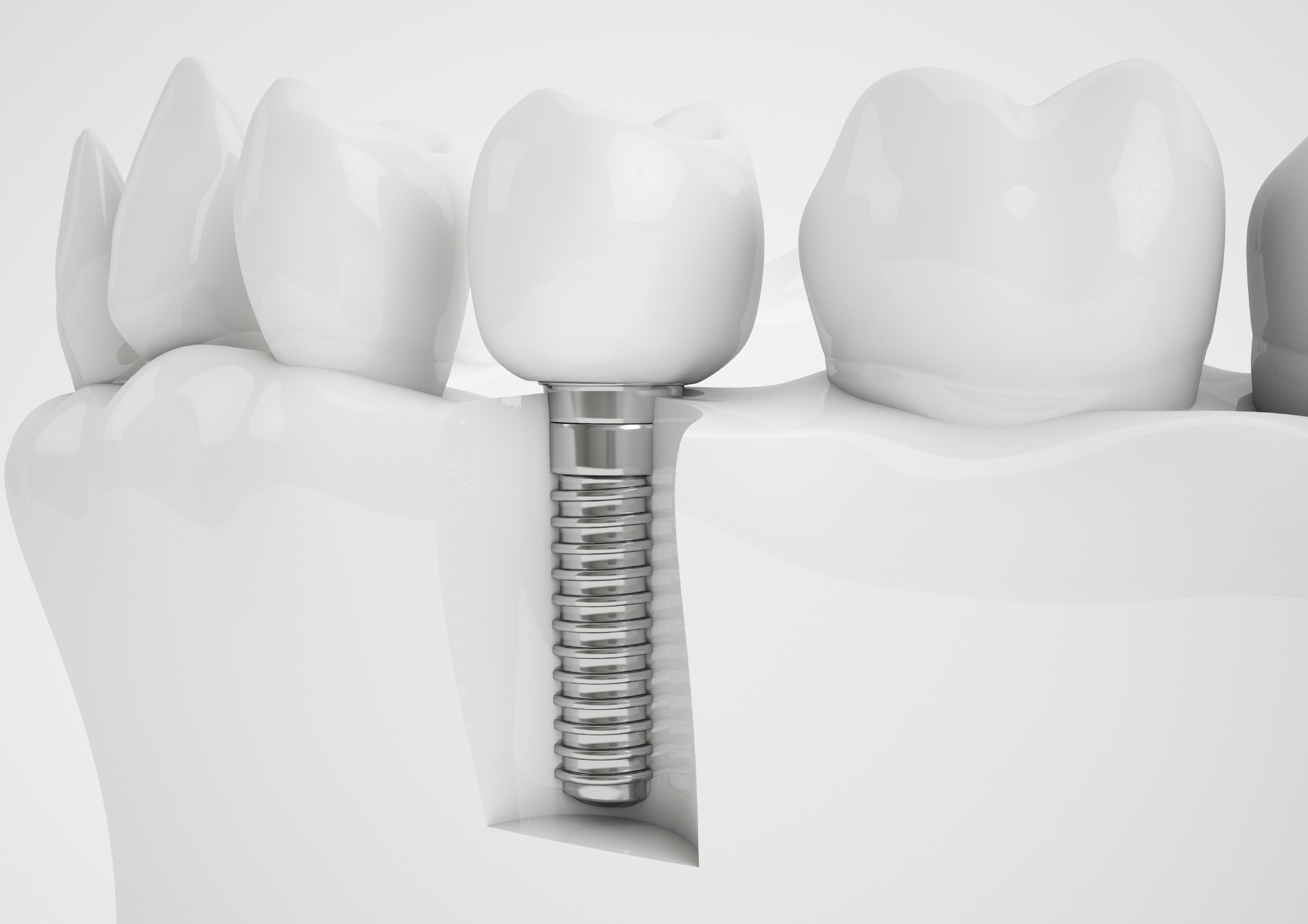 Failures of Implant – Tip!